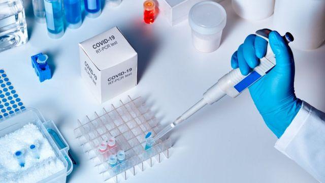 26 casos nuevos de Covid-19 se contabilizan en la región del Biobío al 30 de agosto de 2021, con 150.262 casos acumulados y 276 casos activos.